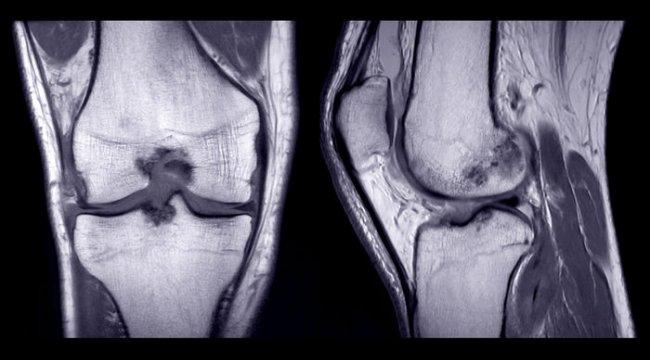Uzun süreli koşanlarda kıkırdak hasarı daha fazla mı yaşanıyor?