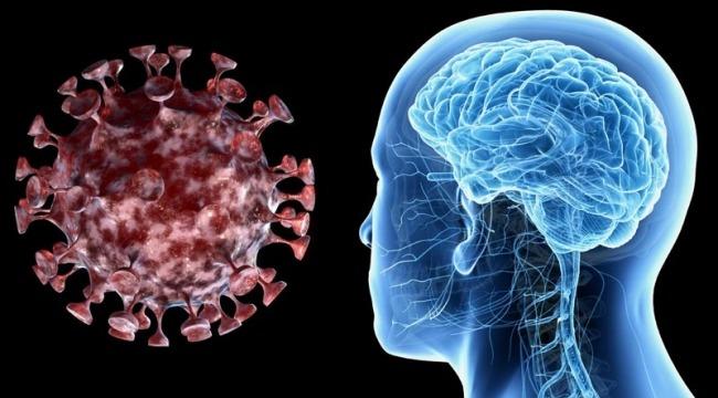 Koronavirüs Felce Yol Açabilen Kan Pıhtılarına Neden Olabilir