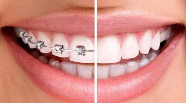 Tel takmadan düzgün dişlere sahip olmak mümkün