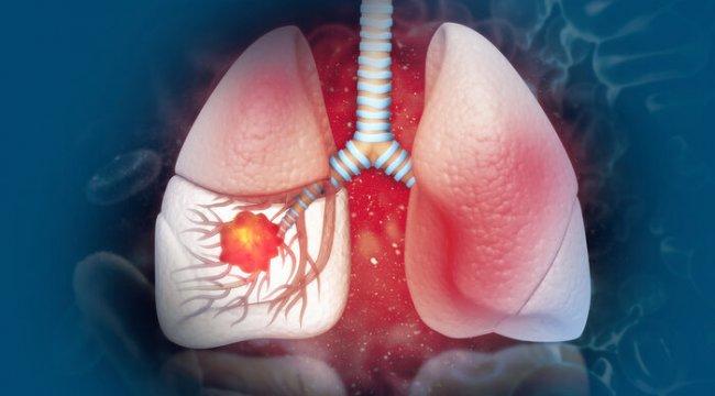 İleri evre akciğer kanserinde umut veren tedavi